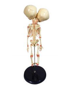 Monday Kids 37cm Human New Double Head Baby Anatomy Skull Skeleton Anatomical Brain Anatomy Education Model Anatomical Study Display